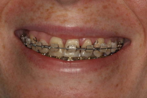 before and after traditional braces