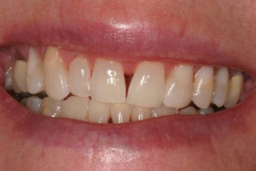 Patient1-diastemaclosure-409