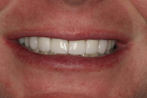 Difference cosmetic dentistry makes