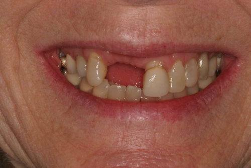 Patient11-ImplantBefore