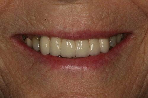 Patient11-ImplantFinal