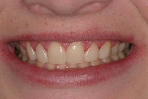 smile before and after cosmetic treatment