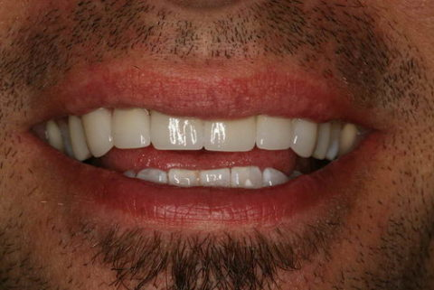 before and after images of dental crowns