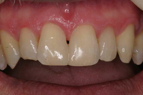 Before and After Dental Treatment at Saratoga Dentistry
