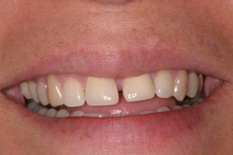 Gaps between teeth removed