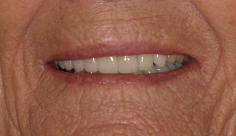 Cosmetic Dentistry Treatment before and after pictures