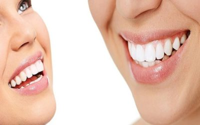 How do dental caries differ from dental cavities?